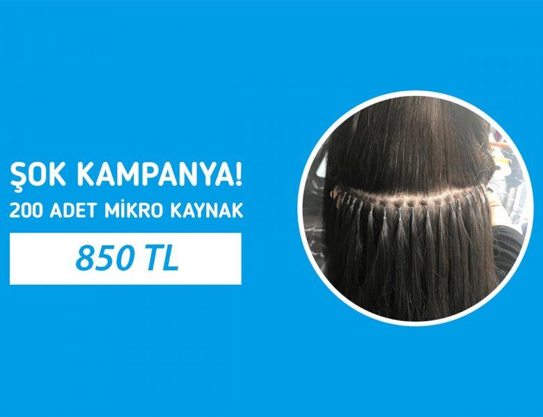 En İyi Saç Kaynak Yaptır